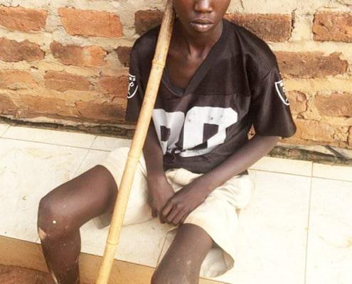 A street child needing surgery